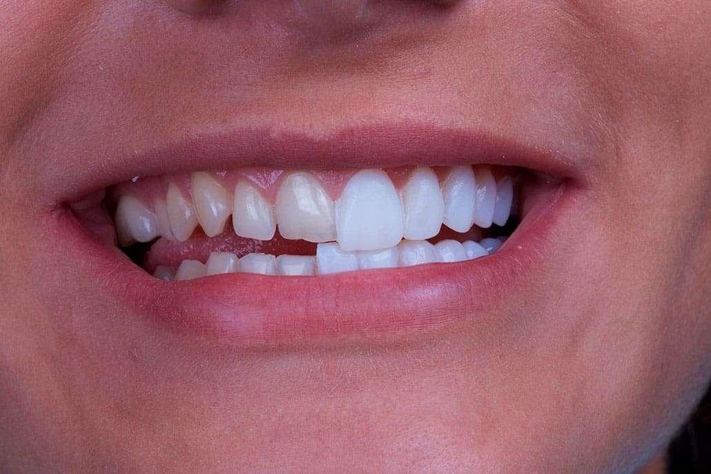 Dentes De Porcelana Quanto Custa Ideal Odonto