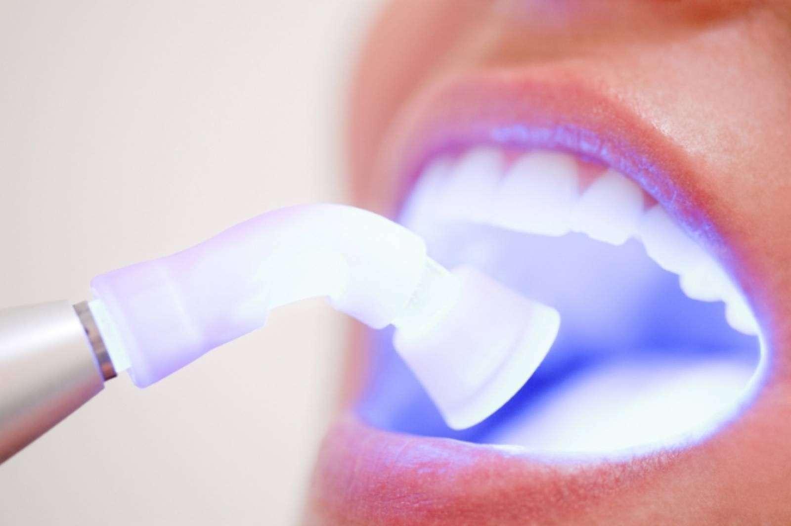 Dentista Clareamento Ideal Odonto
